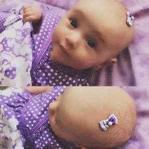 Mini barrettes pour bébé -Tiny